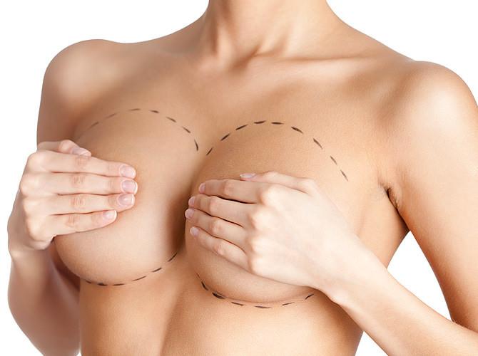 Mastoplastica additiva: Aumentare il seno!