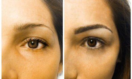 Dermopigmentazione, cosa c'è da sapere?
