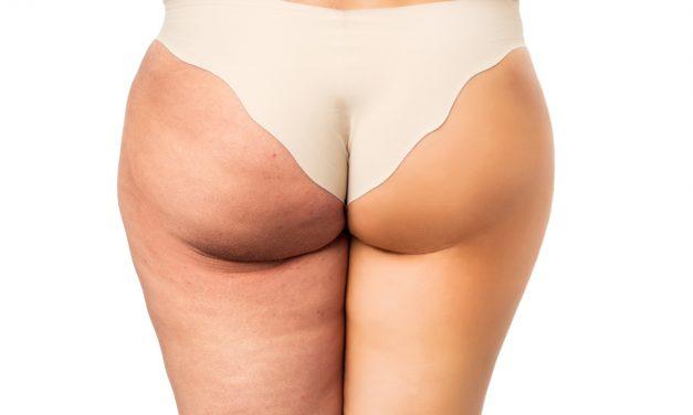 La cellulite, che cosa è e come combatterla?