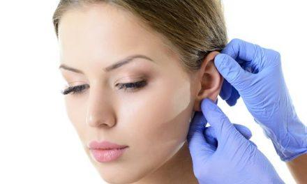 La chirurgia dei lobi – tutta colpa degli orecchini!