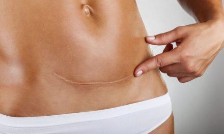 La microchirurgia estetica delle cicatrici