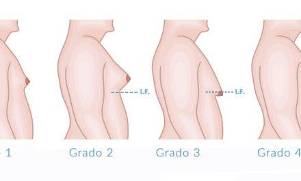 Ginecomastia – Riduzione seno maschile