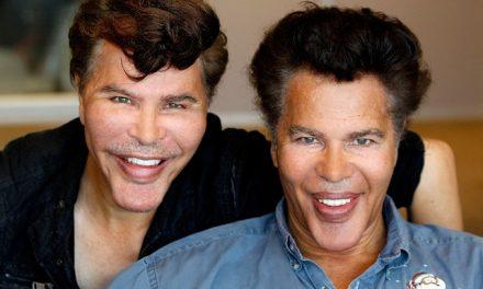 Il caso dei gemelli e la chirurgia sfuggita di mano!