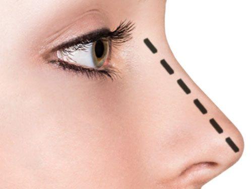Medicina estetica: correzioni soft per il naso