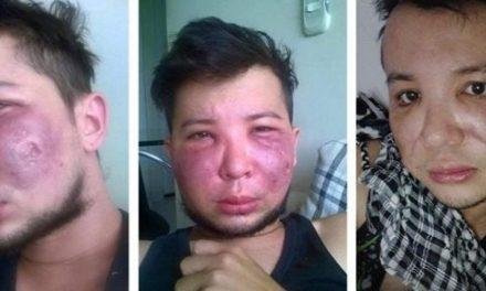 Un giovane e la sua terribile disavventura con al chirurgia estetica!