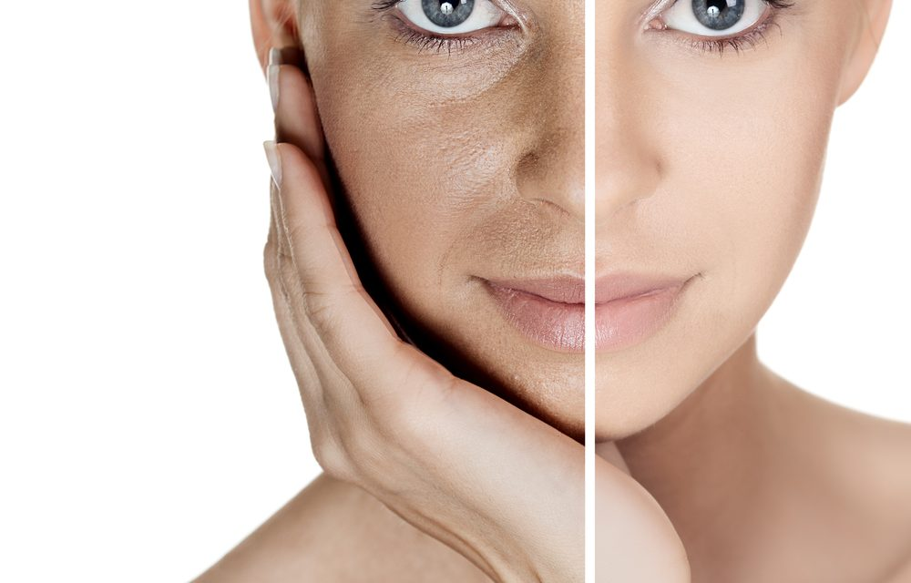 Vuoi una pelle nuova? ti presentiamo il peeling chimico