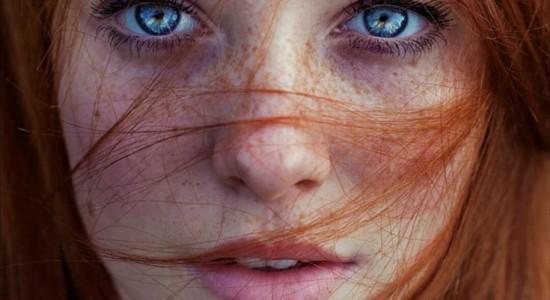 Le lentiggini – come liberarsene?