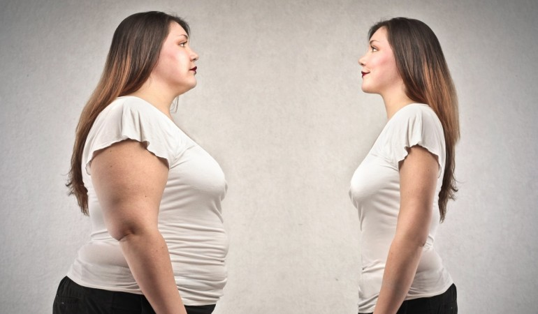 Il ruolo della chirurgia plastica-ricostruttiva negli esiti dell'obesità