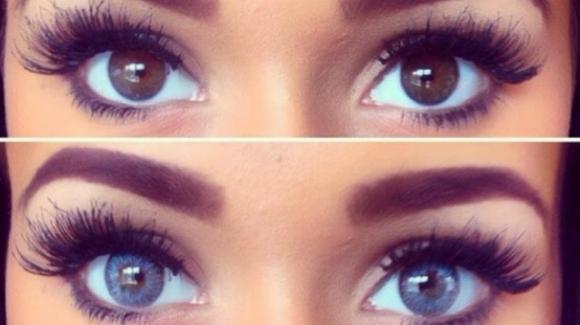 Modella cambia il colore degli occhi con la chirurgia e perde la vista