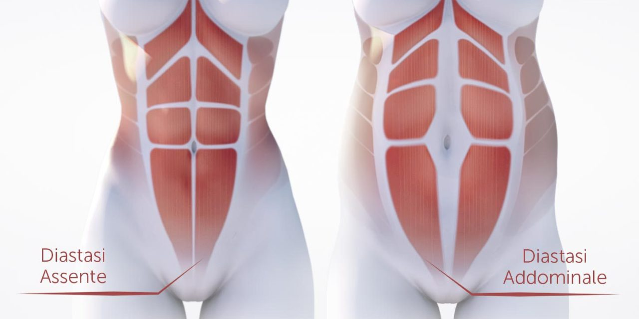 La diastasi addominale