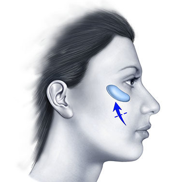 Le protesi degli angoli mandibolari