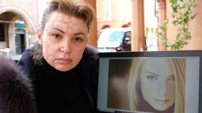 Cristina Guidetti – un'ex modella sfigurata dal chirurgo