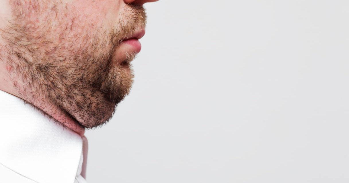 Chirurgia estetica e doppio mento