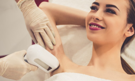 La depilazione laser: come funziona
