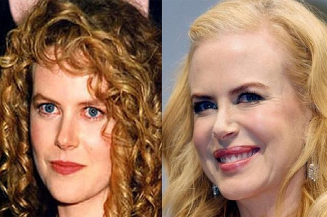 Nicole Kidman e l'eterna giovinezza.