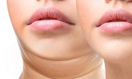 Il doppio mento, un inestetismo che riguarda uomini e donne, giovani e meno giovani.
