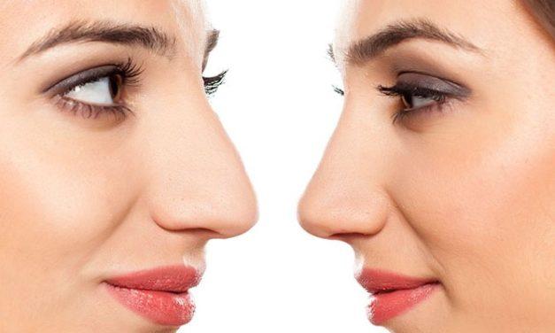 Rinofiller – un naso senza difetti