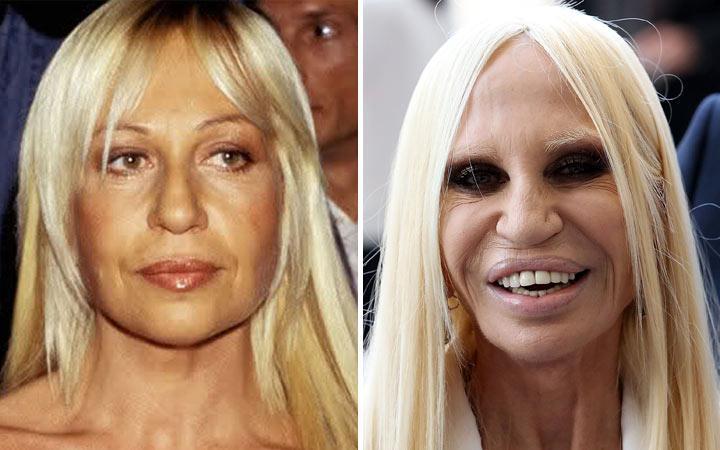 Donatella Versace e l'abuso di chirurgia estetica!
