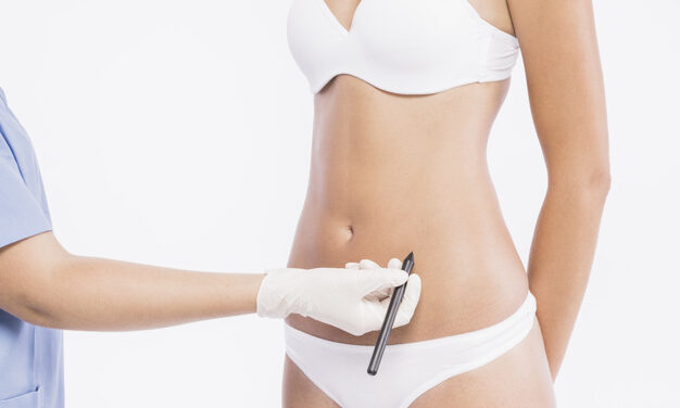 Desideri rimodellare il tuo corpo? La liposcultura fa per te!
