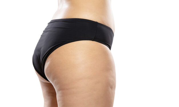 La carbossiterapia – stop pelle a buccia d'arancia!